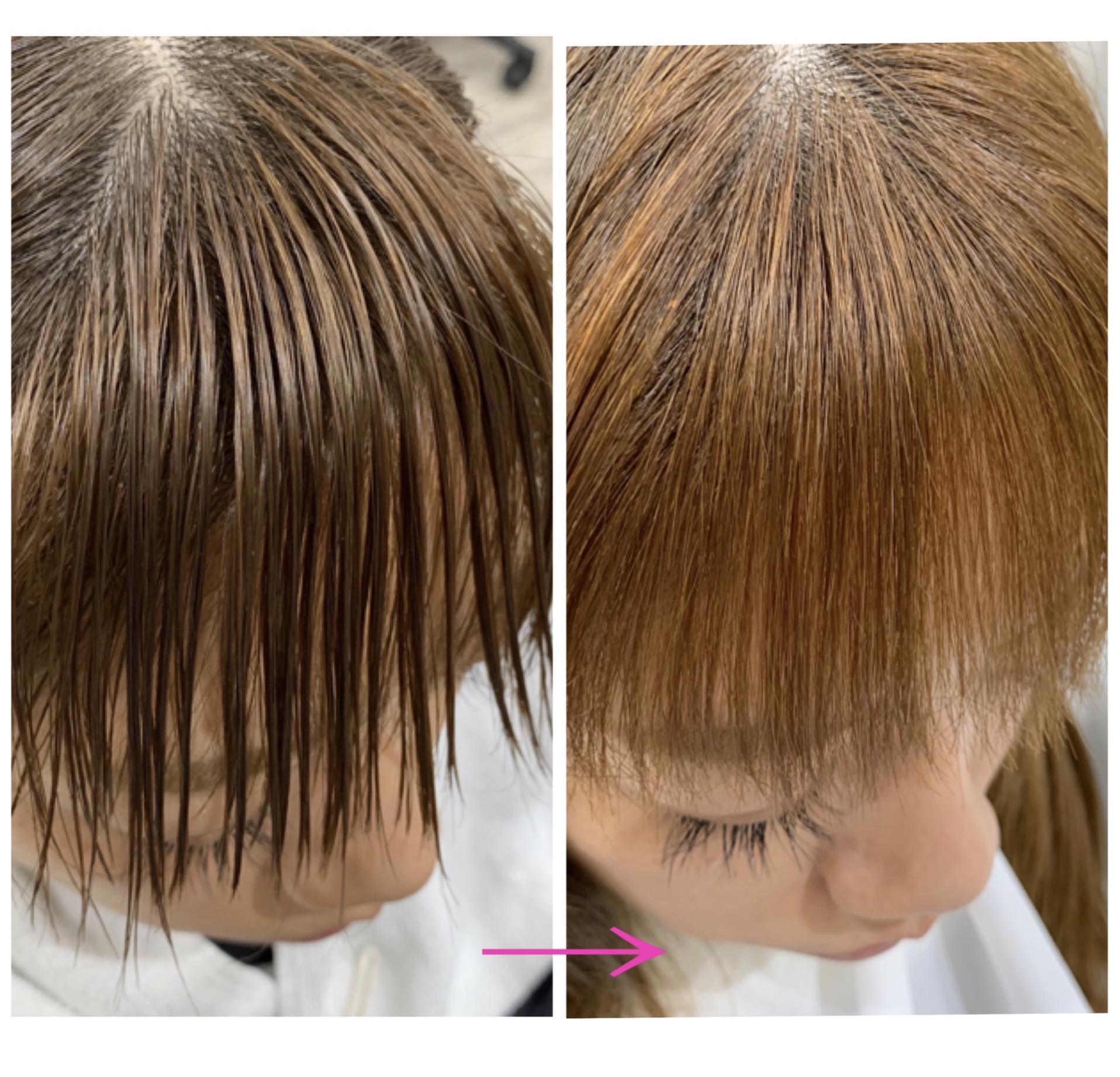 縮毛矯正 チリチリ 前髪
